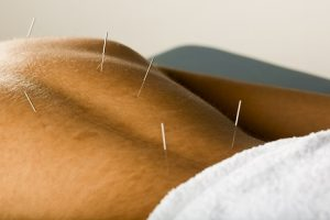 Does Acupuncture Work?